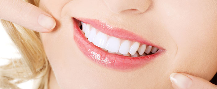 white smile - tooth colored fillings