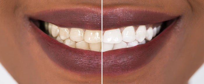 teeth-whitening-smile.jpg